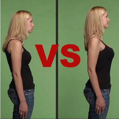 do-posture-braces-work